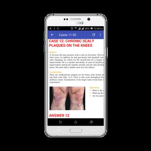 Screenshots - 100 Cases In Dermatology