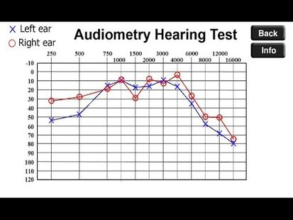 Video Image - Check Your Hearing